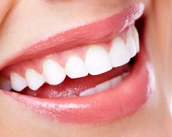 Teeth Whitening Plano, TX | 1st in Smiles
