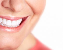 Dental Crowns & Dental Bridges | 1st in Smiles - Plano, TX Dentist