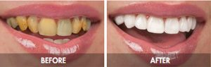 Smile Before and After | 1st in Smiles - Plano, TX Dentist