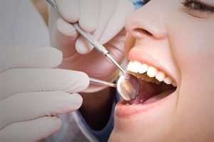 Dental Cleanings and Exam 1 | 1st in Smiles - Dentist Plano, TX