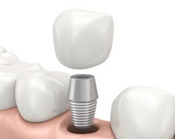Dental Implants 1 | 1st in Smiles - Dentist Plano, TX