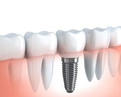 Dental Implants 2 | 1st in Smiles - Dentist Plano, TX