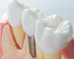 Dental Implants 3 | 1st in Smiles - Dentist Plano, TX