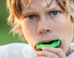 Mouthguards 1 | 1st in Smiles - Dentist Plano, TX