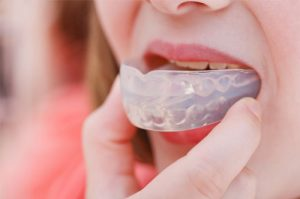 Mouthguards 2 | 1st in Smiles - Dentist Plano, TX