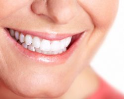 Teeth Whitening 1 | 1st in Smiles - Dentist Plano, TX