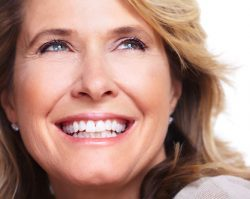 Dental Veneers 1 | 1st in Smiles - Dentist Plano, TX